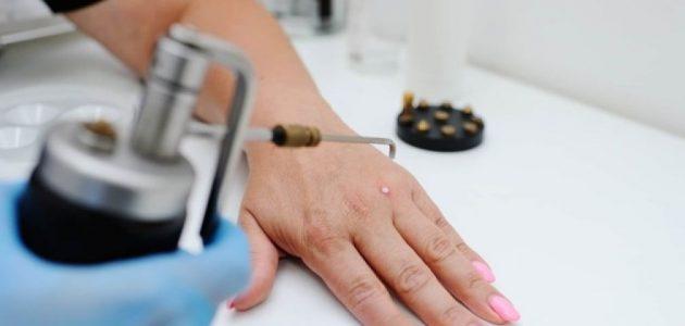 Как удаляют бородавки в клиниках